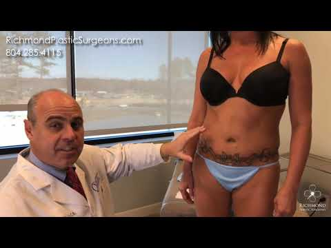 Pre-Op before Liposuction Surgery with Dr. Ladocsi