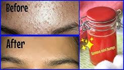 hqdefault - Rash Looks Like Pimples On Face