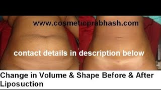 Liposuction Delhi India : Fat Reduction Body Reshaping