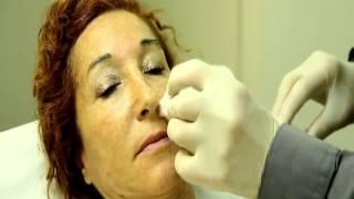 Инъекции Гиалуроновой Кислоты для удаления морщин