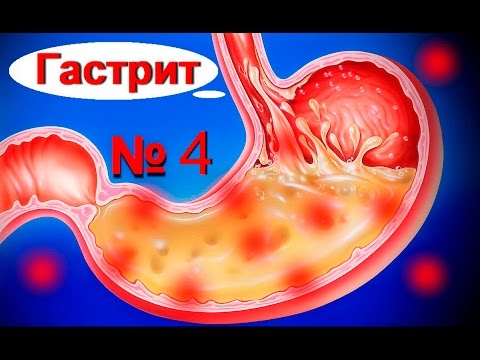 Эрозивный гастрит: симптомы, лечение, правильное питание