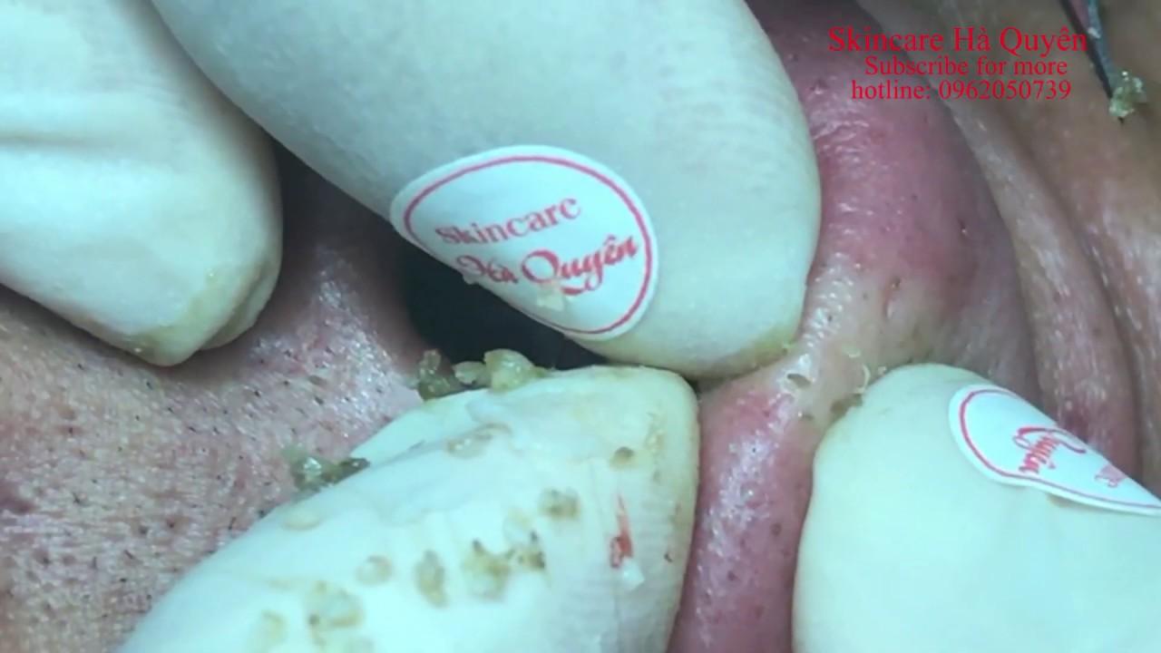 |272| Blackheads and Acne treatment in Ha Quyen Spa on 09/07/2020 - Điều trị mụn tại Hà Quyên spa