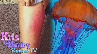Bimby gets stung by a jellyfish