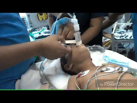 IPPV during anesthesia with I gel