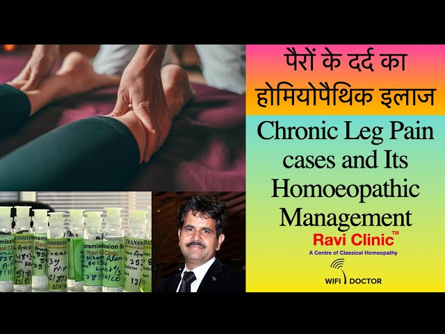 Chronic Leg Pain Homoeopathic Management Dr.Ravi Singh
