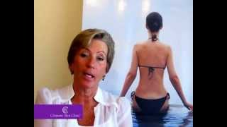 Patient testimonial - CoolSculpting (non-invasive liposuction) fat loss treatment Thumbnail