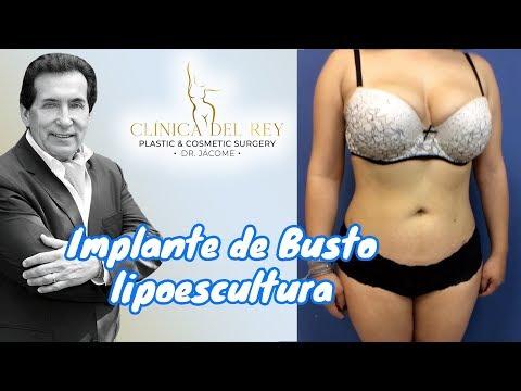 Implante De Busto Y Lipoescultura | Dr. Franco Reyes Jácome | Clínica Del Rey