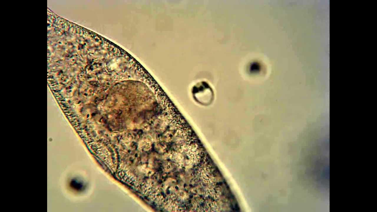 Paramecium Multimicronucleatum Feeding