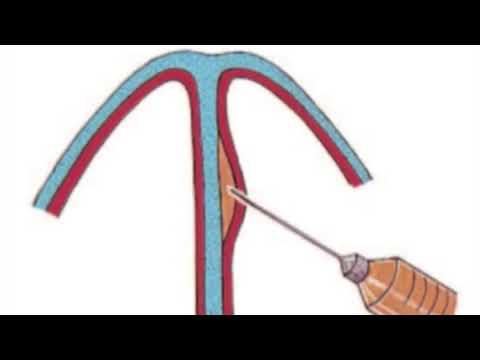 Anestesia local en rinoplastía