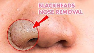 코에 여드름 Black Head Removal