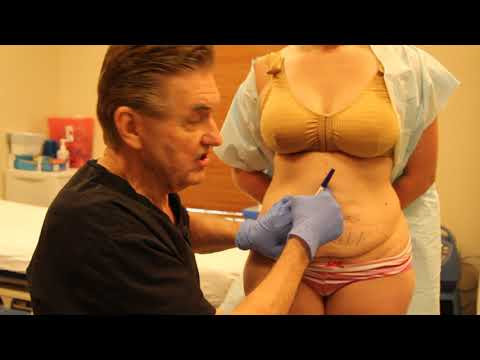 Pre-Operative Tummy Tuck Patient Consultation