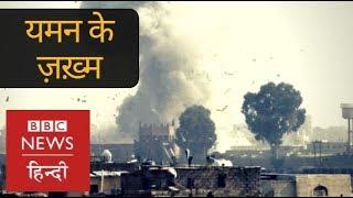War-Torn Yemens patients Reach Delhi Hospital For Treatment (BBC Hindi)
