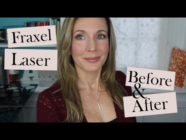 My 1st Fraxel Dual Laser Treatment Before After Youtube