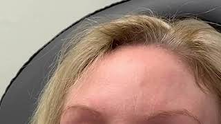 SkinLIFT™  Non surgical Facial Rejuvenation