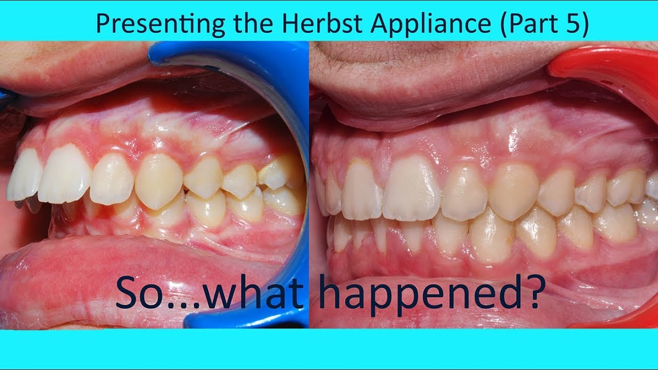 Presenting The Herbst Appliance Part 5 Tom Nasiopoulos