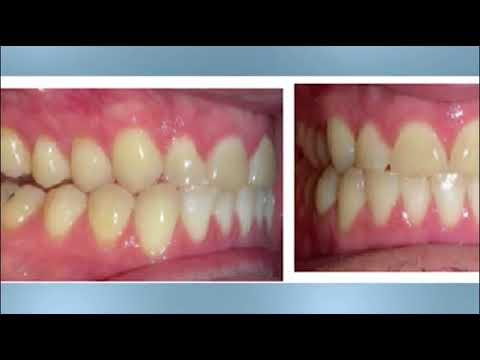 Kentucky Orthodontics & Invisalign: Class III Jaw Surgery
