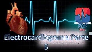 Hipertrofia ventricular