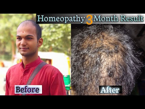 Homeopathy 3 Month Hair Grow Result After Use।Hair Loss Treatment।Sonu Kumar Mishra।