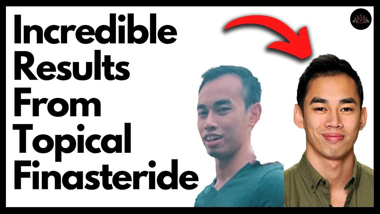 How to Make Topical Finasteride with Richie Z