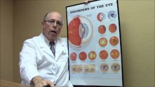 Pseudoexfoliation with Cataracts and Glaucoma