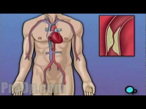 Coronary Artery Bypass Graft (CABG) Surgery - PreOp Patient Education HD