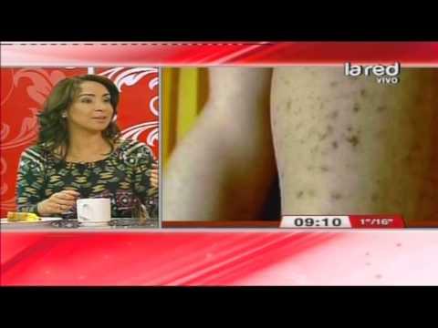 Consecuencias depilacion definitiva