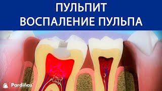 лечение пульпита зуба: как лечат пульпит в стоматологии. Больно ли лечить пульпит и как снять боль