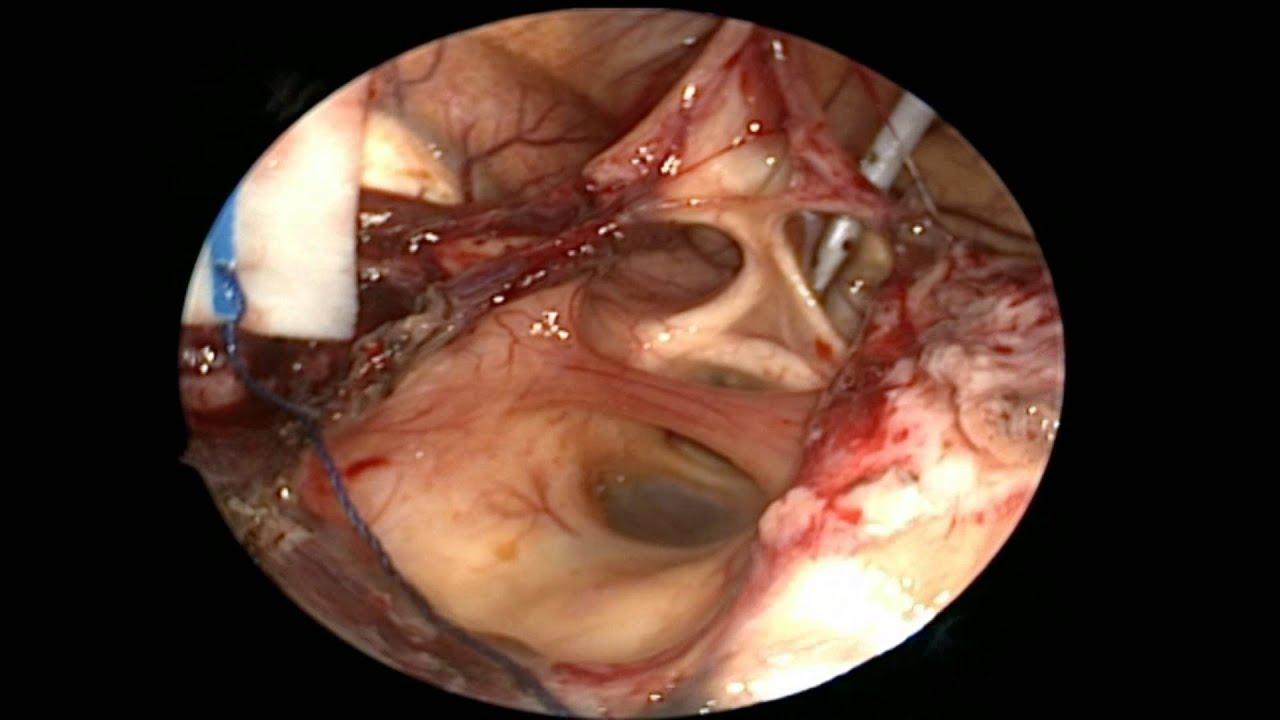 Beyin Tmr Ameliyat 6 YouTube