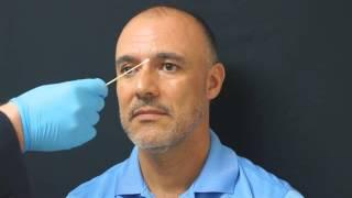 Juventis MedSpa Botox Injection - Dr. Bruce Rubin