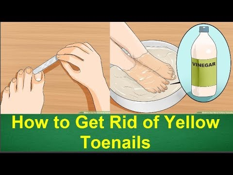 How to Get Rid of Yellow Toenails | How to Get Rid of Toenail Fungus ...