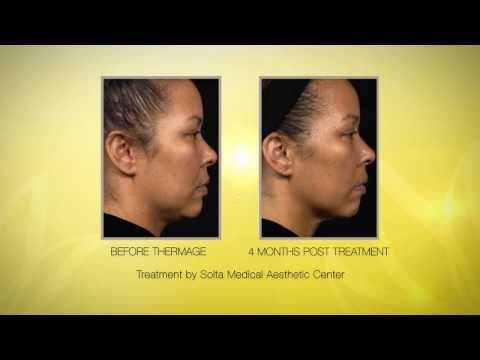 Thermage CPT Radio Frequency Skin Tightening - YouTube