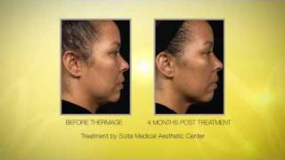 Thermage CPT Radio Frequency Skin Tightening Thumbnail