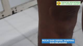 dr. Akhmad, SpB (K) V Dokterku edisi 15 Juli 2019 RS Hermina Bekasi Anda punya keluhan seputar keseh.