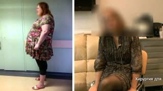 отзыв о похудении после операции СЛИВ (рукавная гастропластика, продольная резекция желудка)