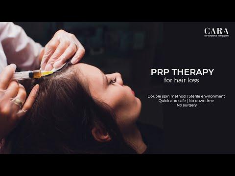 Platelet rich plasma therapy for hair loss at CARA clinic Mumbai by dr Asif