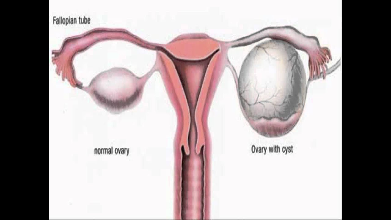 Polycystic Ovarian Other Diseases Syndrome Related And