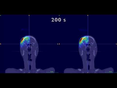 Online proton therapy monitoring: clinical test of a Silicon-photodetector-based in-beam PET