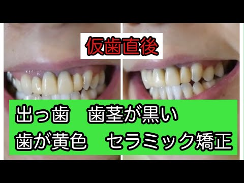海外では悪い歯並びがマイナスイメージとなり口元を美しく整えることが評価される