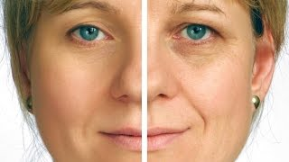Mid Facelift  - Toronto Cosmetic Clinic Thumbnail
