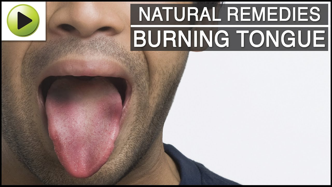 Burning Tongue - Natural Ayurvedic Home Remedies