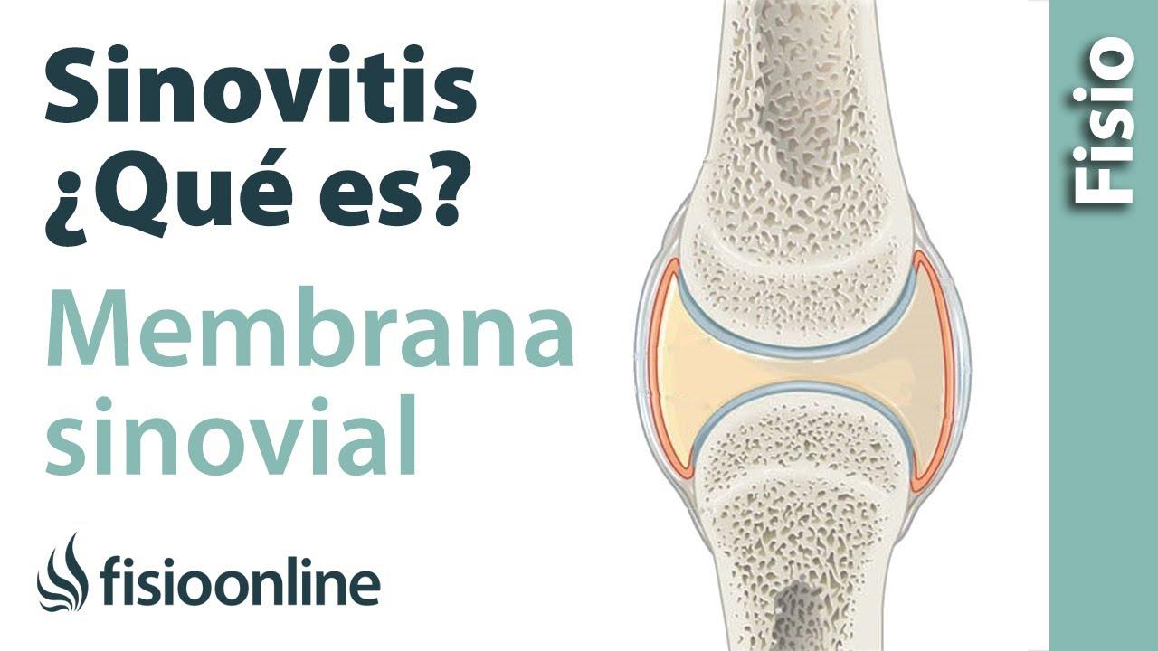 sinovitis rodilla tratamiento fisioterapia