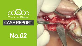 [ENG] Immediate loading with Immediate implantation after extraction \u0026 ridge splitting
