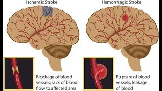 Ischemic and hemorrhagic brain stroke|risk factors|stroke recovery|death