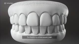 COOKE ORTHO - How invisalign works