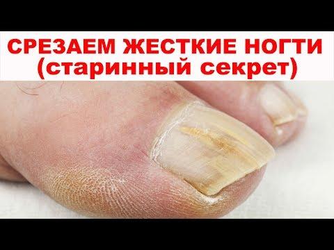 СТАРИННЫЕ СЕКРЕТЫ как постричь толстые и жесткие ногти на ногах. Узнайте, как размягчить ногти.