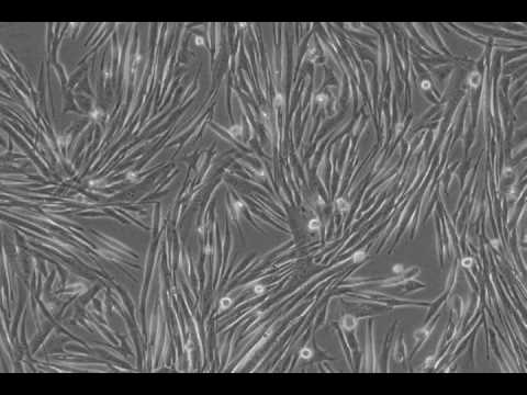 differentiation of mm14 skeletal muscle cells. - youtube, Muscles