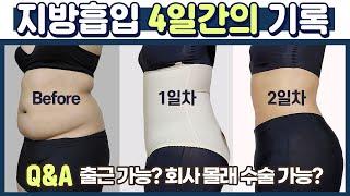 [지방흡입 4일차 후기 Q&A] 붓기, 멍? 회…