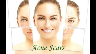 Naturally Fade Acne Scars with Home Remedies | How to make Acne Scars go away ?