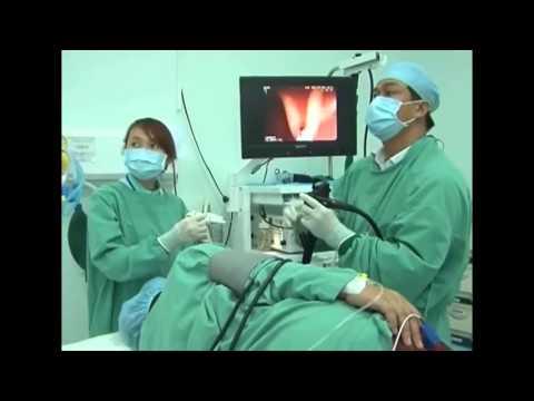 Nội sọi dày tá tràng bằng phương pháp gây mê