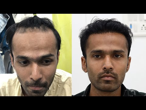 natural-hair-line-transplant-2019-|-new-roots-hair-transplant-|-hair-restoration-by-fue-technique